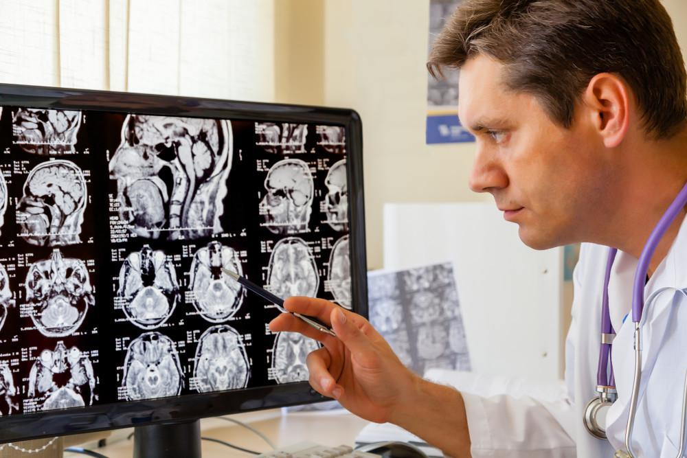 Chiropractor analyzing imaging of the brain